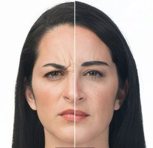 botox before after fairfield ct