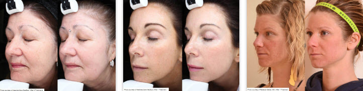 laser skin rejuvenation results ct