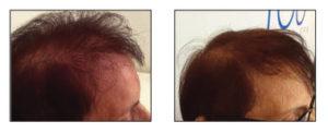 hair loss treatment fairfield ct