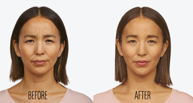 jeuveau newtox before after results