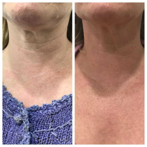 Plasma Pen Advanced Skin Tightening and Resurfacing | Dr  Gould