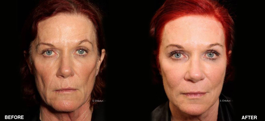 Silhouette InstaLift™ Non-Surgical Facelift fairfield ct results