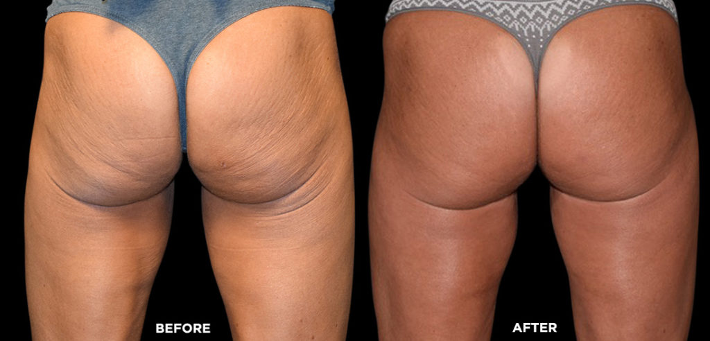 emsculpt non surgical butt lift results