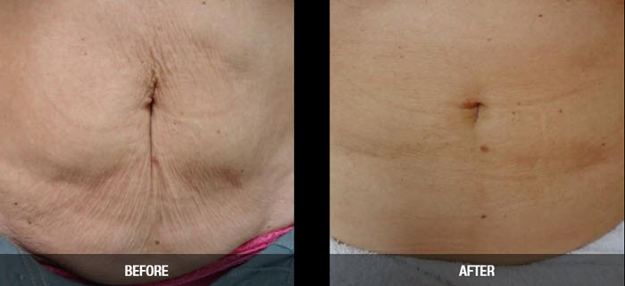 velashape 3 before after results abdomen fairfield ct