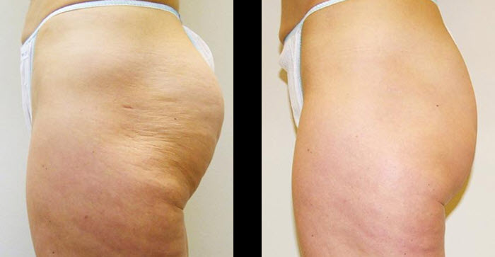 velashape III before and after results fairfield ct