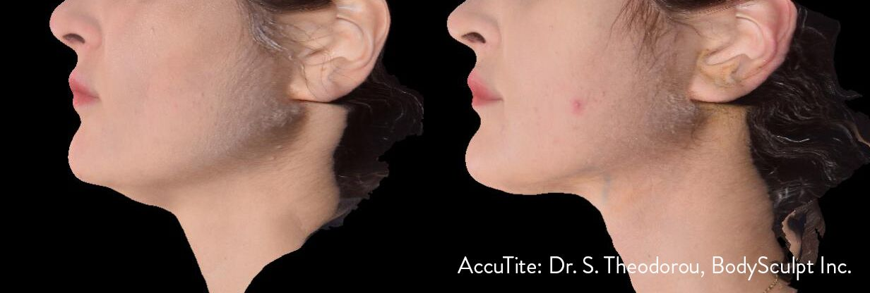 accutite before after results