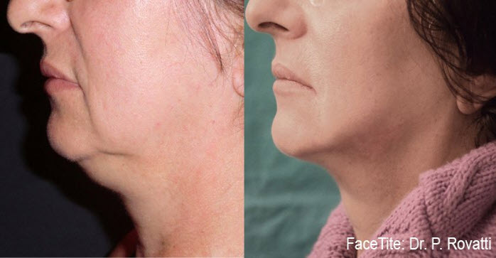 facetite nonsurgical facelift results