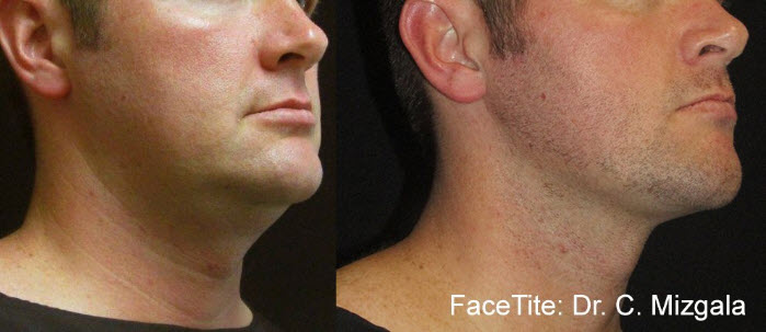 facetite nonsurgical facelift before after results
