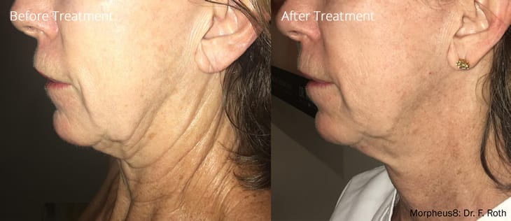 Morpheus8 RF Micro-Needling Treatment