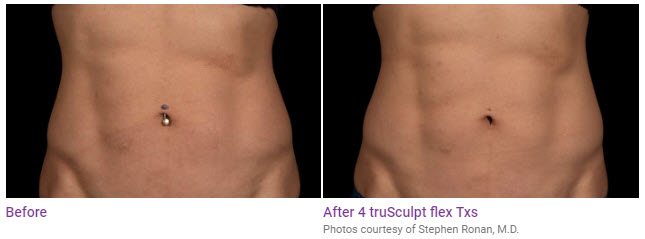 trusculpt flex before after results