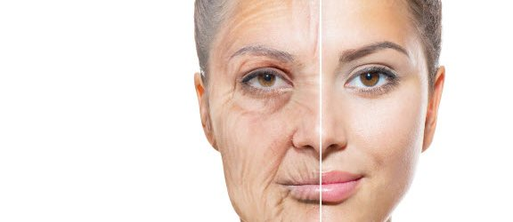 Anti Aging treatment by Dr. Gould in Fairfield