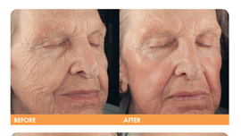 Smartskin Treatment Results