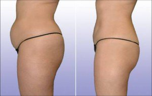 Belly fat burner treatment by All About You Medical Spa in Fairfield, CT