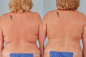 Laser body sculpting results before & after