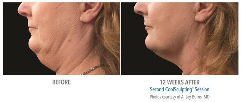 coolmini double chin removal results: Before & After