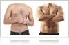 Coolsculpting treatment for men in fairfield, ct