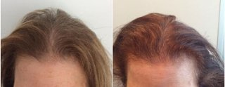 Hair loss treatment results: Before & After