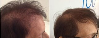 Hair growth before and after treatment results