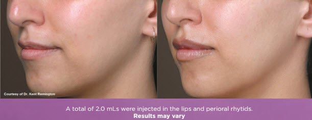 Juvéderm Volbella® lip injection results fairfield ct