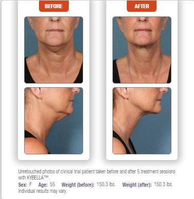 Kybella Double Chin treatment before & after results