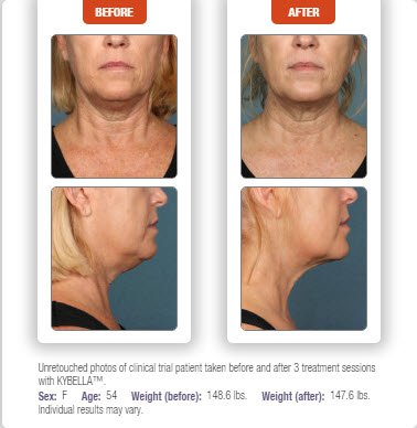 Before & After Kybella treatment results