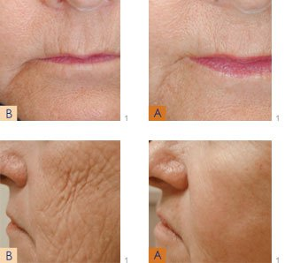 Laser antiaging treatment result before & after