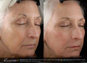 Laser treatment for skin by All About You Medical Spa in Fairfield