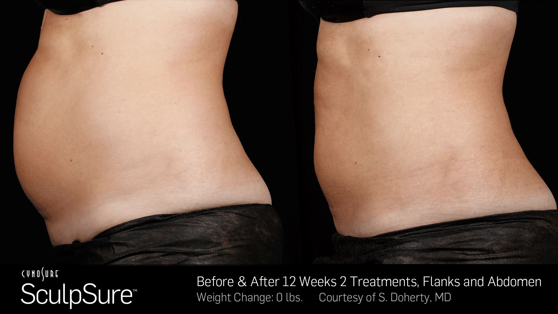 Sculpsure fat reduction treatment in Fairfield