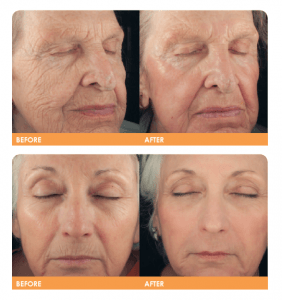 Smart Skin laser treatment results: Before & After