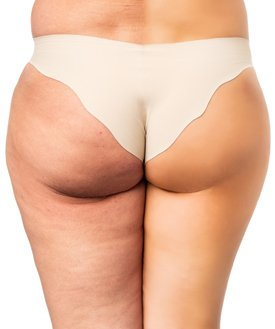 Cellulite treatment by All About You Medical Spa in Fairfield