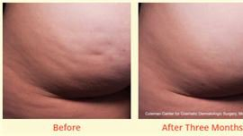 Cellfina Treatment Results by All About You Medical Spa