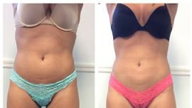 Coolsculpting in Fairfield Medical Spa