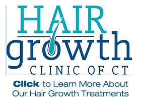 hair growth clinic of ct
