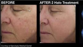 Halo Laser Treatment at All About You Medical Spa