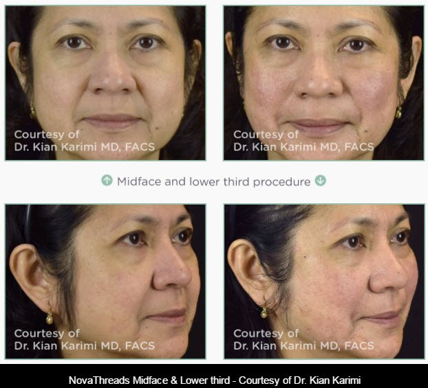 NovaThreads Non-Surgical Facelift | All About You Medical Spa