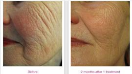 Profound Skin Tightening Treatment in Fairfield, CT