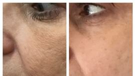 Microneedling Treatment in Fairfield, CT